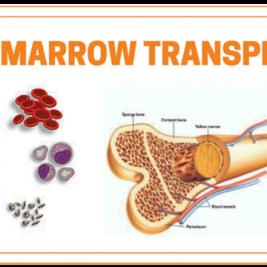 The Various Steps Of Bone Marrow Transplantation
